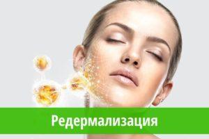 Редермализация кожи