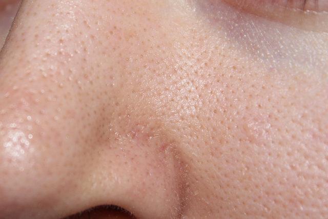 Лечение сальных пробок на лице