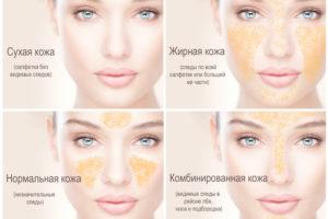 Типы кожи в косметологии