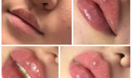 Аугментация губ или губки бантиком!